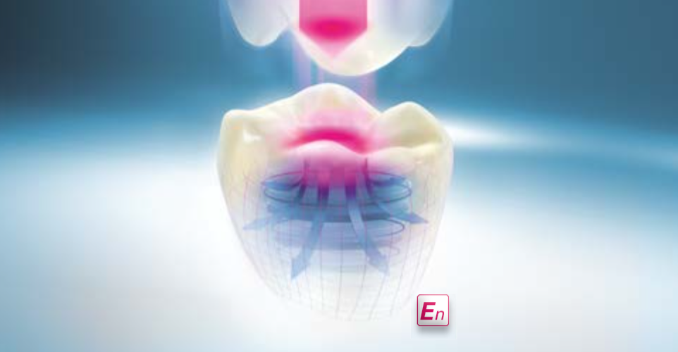 VITA ENAMIC – UNIVERSAL - Not for CEREC & inLab